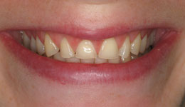 Before-Veneers