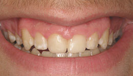 Before-Laser Crown Lengthening