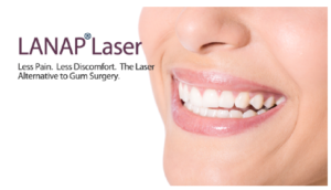 LANAP® Laser Gum Therapy