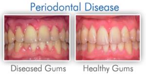Diseased gums vs. healthy gums