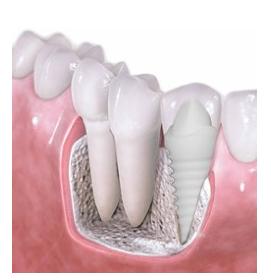 Zirconia Dental Implants In New York Best Holistic