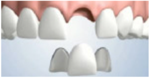 standard dental bridge design