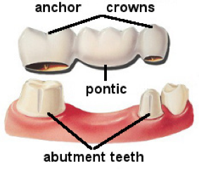 components of a dental bridge
