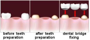 dental bridge treatment steps