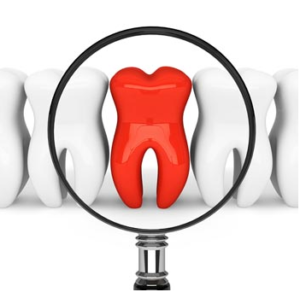 emergency root canal therapy