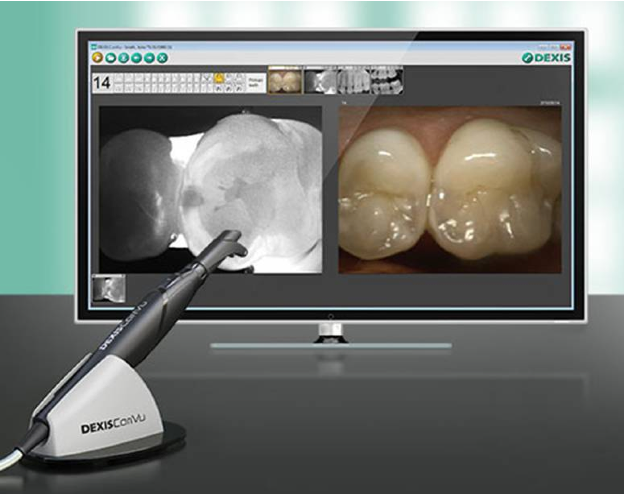 Electronic caries detection is state-of-the-art cavity detection