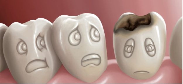 Dental Caries are tooth decay (cavities) that can progress and lead to further dental problems