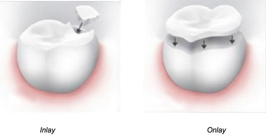Dental inlay vs dental onlay