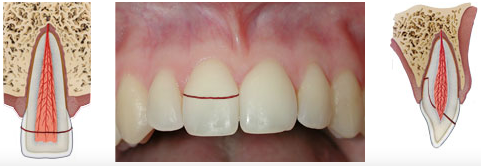 Crown-root fracture without pulp involvement - a break that involves the enamel and dentin, and also exposes the pulp.