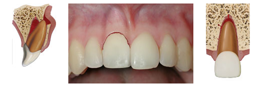 Lateral luxation - a fracturing of the bones in the gum surrounding the tooth accompanied by displacement of the tooth.