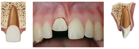 Intrusion - when the tooth is displaced into the alveolar bone and is often accompanied by a fracture to the socket.