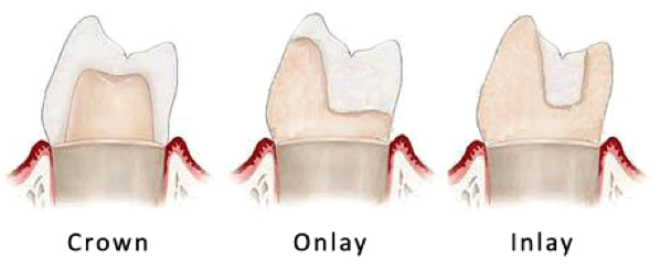 Differences between dental inlays and onlays