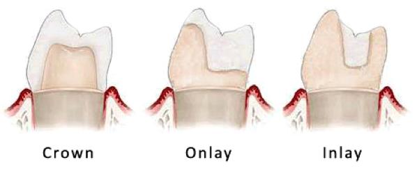 Dental Inlays and Onlays - Rockefeller Cosmetic Dentistry