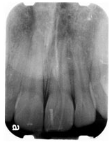 periapical x-ray