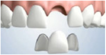 Dental bridge supported by crowns