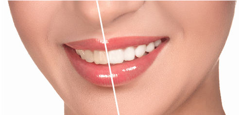 Uses of porcelain veneers