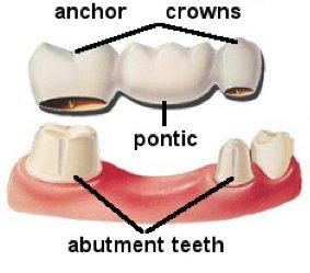 components of a dental bridge