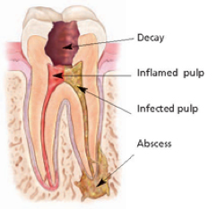 Endodontic therapy (root canal)
