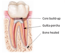 Tooth saved and restored with root canal therapy