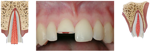 Enamel-dentin-pulp fracture - a break that affects the enamel and dentin, and exposes the pulp.