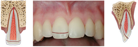 Crown-root fracture without pulp involvement - a break that involves the enamel and dentin, but does not expose the pulp.