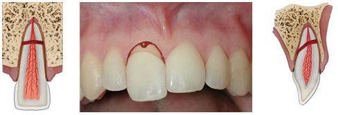 A root fracture is a break in the root of the tooth that includes enamel, dentin, cementum, and pulp.