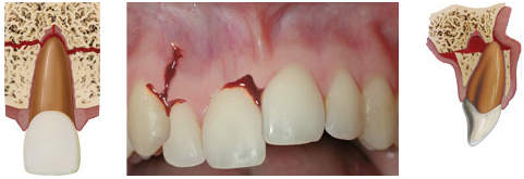 Alveolar fracture - when the tooth-bearing part of the jaw breaks, resulting in dislocating one or several teeth