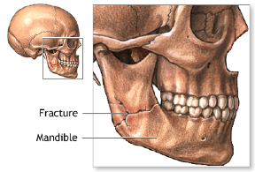 Jaw fracture - a break that may fracture any number of parts of the mandible, and may or may not affect the teeth.
