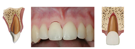 Sublaxtion is a dental injury that increases mobility of tooth without displacing it.