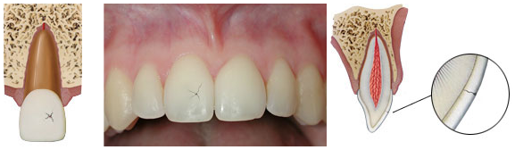 Infraction - when the enamel of the tooth cracks without damaging the structure of the tooth.