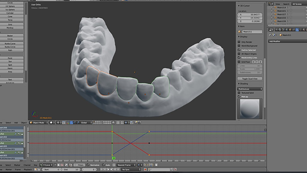 3d Imaging process for Invisalign