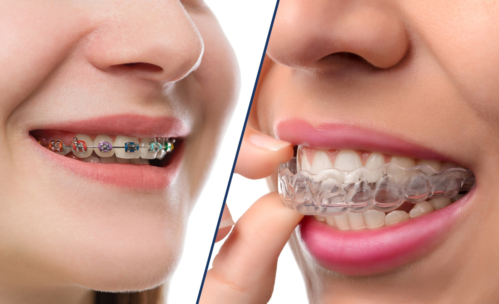 On the left are standard metal braces. On the right is a clear, effective Invisalign aligner.