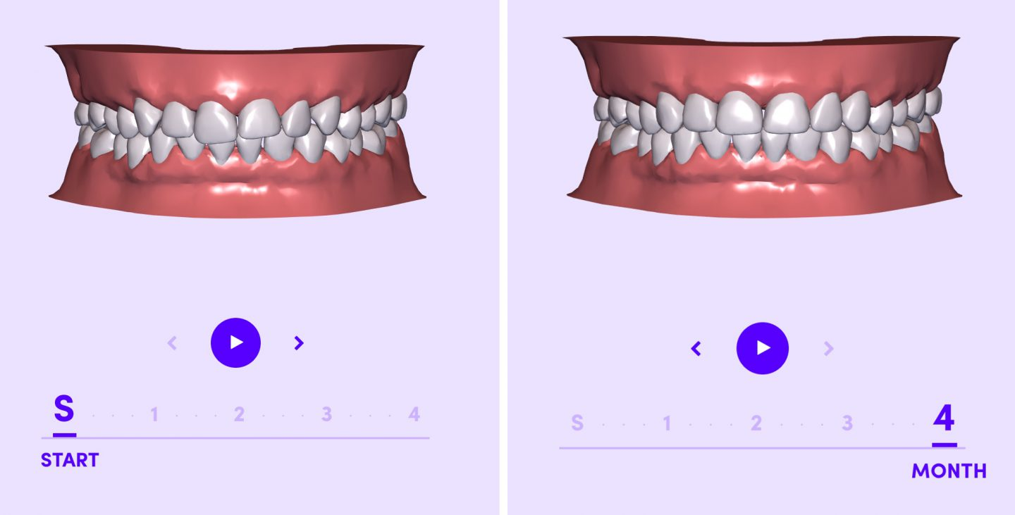 This photo is showing how each step in the Smile Direct Club process is done through the computer and shipped to your home.