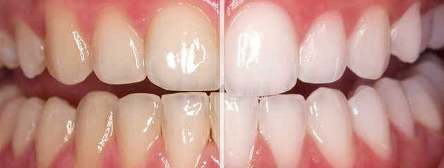 Take Home Whitening Vs In Office Whitening Which Is Best For Me